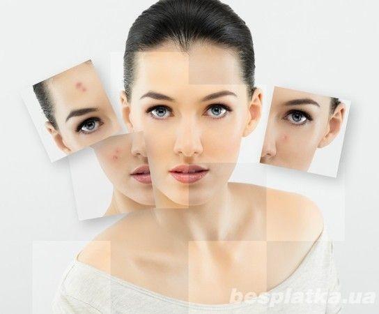Пилинг лица. косметология медэстет фото №1
